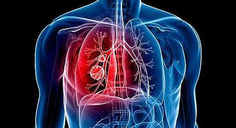 ASCO selecciona el abstract de lurbinectedina de cáncer de pulmón microcítico en segunda línea para el programa 'Best of ASCO'