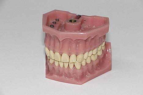 El Máster Cerámica Dental y CADCAM dará pronta salida al mercado laboral, a través de CFI Reina Isabel