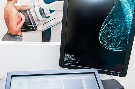 La Sociedad Española de Diagnóstico por Imagen de la Mama (SEDIM) y Editorial Médica Panamericana crean un diploma especializado en Radiología de la Mama