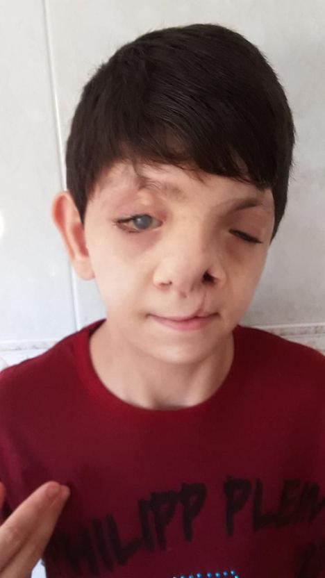 Fundación Adelias busca ayuda para operar a un menor con graves malformaciones en la cara