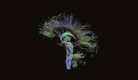 Se incrementan las enfermedades neurológicas y se reduce el personal