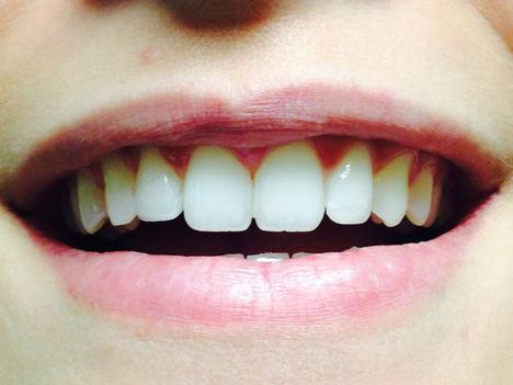Uno de cada cuatro pacenses no sonríe para ocultar su dentadura