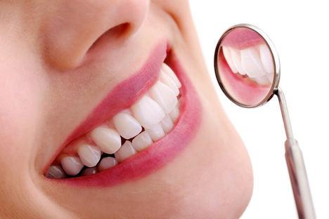 Blanqueadores dentales: ¿qué tienes que saber?