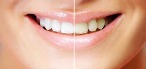 Miles de estadounidenses lo tienen claro; en México está su paraíso dental
