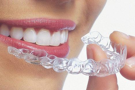 La ortodoncia invisible, una solución personalizada para la salud bucodental